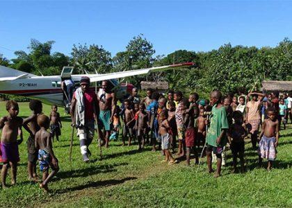 Jambe Cassée En PNG