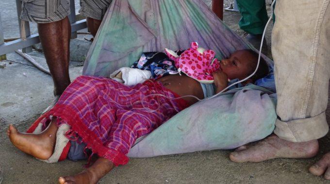 L'enfant Victime De Brûlures Est En Route Pour L'hôpital